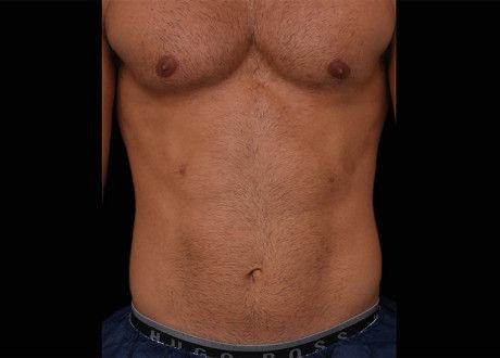 Emsculpt-Male-Abdomen-Before-Lasky-Aesth