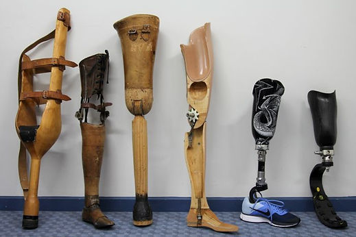 Prostheses progression