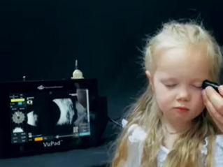 B-scan ultrasonography