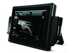 UBM for Managing Glaucoma