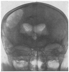 Encephalogramm Ventrikel.jpg