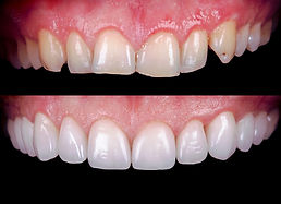 East London Dentist 8.jpg