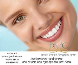 ציפוי חרסינה לשיניים לחיוך מושלם