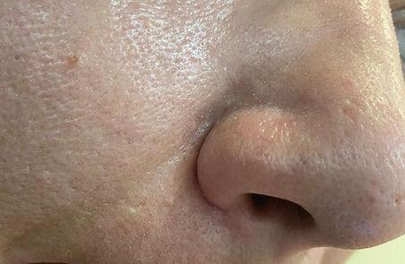 אחרי טיפול הסרת פפילומה בלייזר ליד האף