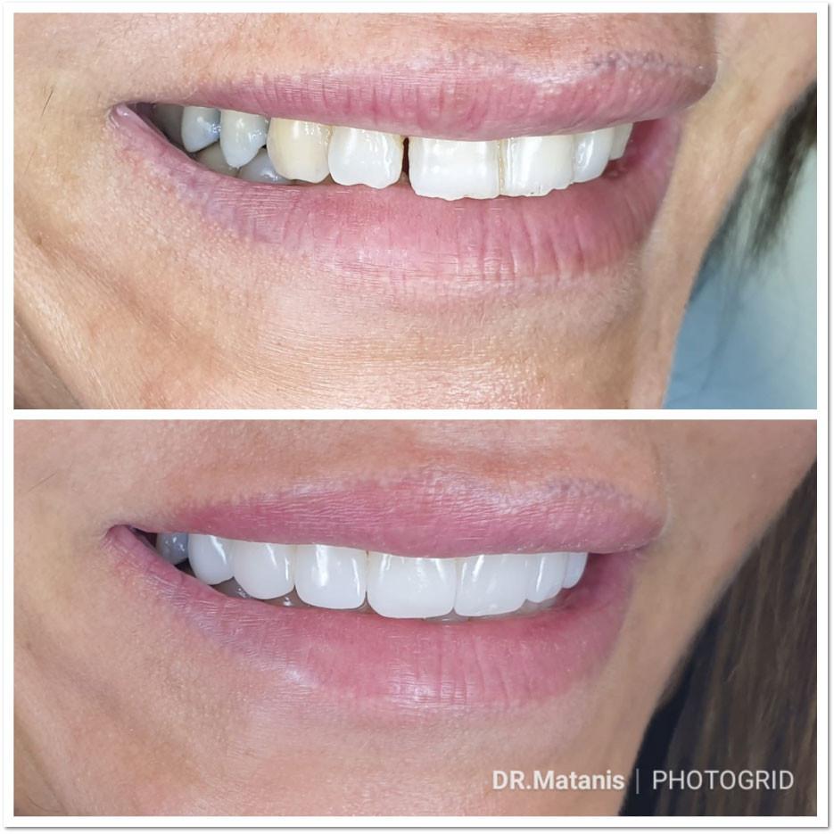 לפני ואחרי ציפוי חרסינה לשיניים