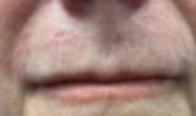 אחרי טיפול הסרת נימים בלייזר מהפנים