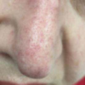 אחרי טיפול אחד של הסרת נימים בלייזר מהאף