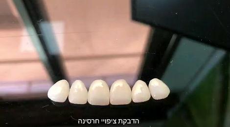 סרטון הדבקת ציפויי חרסינה לשיניים - מרפאת DMC בהנהלת דוקטור מועיין מטאנס