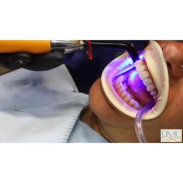 תהליך הדבקת ציפוי חרסינה לשיניים