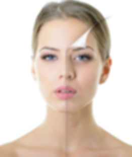 טיפולי מיצוק עור הפנים