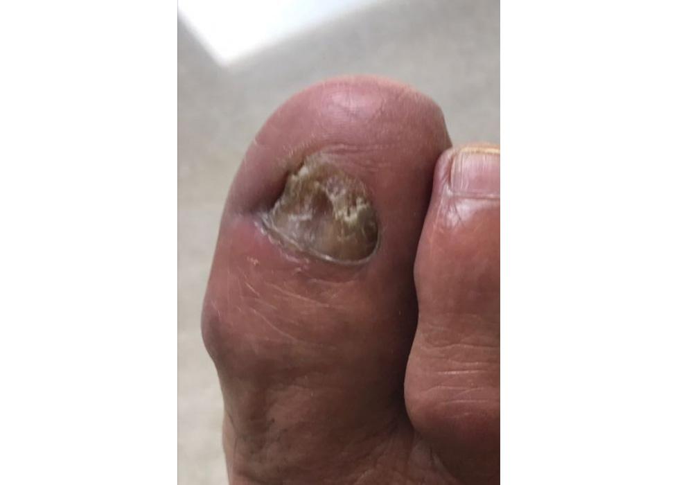 Большой палец с ногтевым грибом пере
