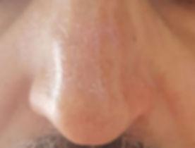 אחרי הסרת אדמומיות מהאף