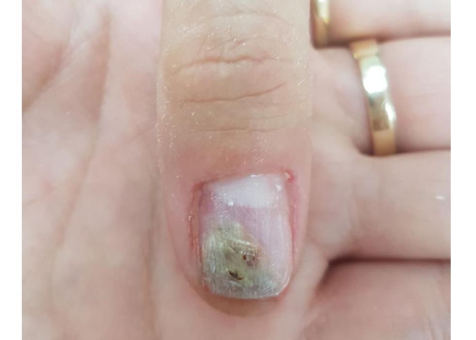 ногти руки с грибом - до лечения
