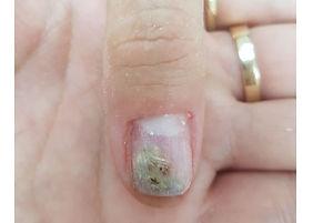 טיפול בפטרת באצבעות הידיים - גלריית תמונות