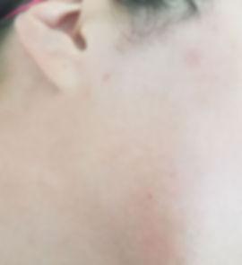 אחרי הסרת שיער מהפנים
