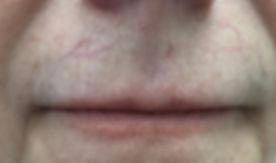 לפני טיפול הסרת נימים בלייזר מהפנים
