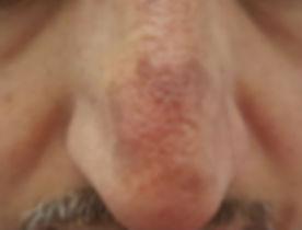 לפני הסרת אדמומיות מהאף