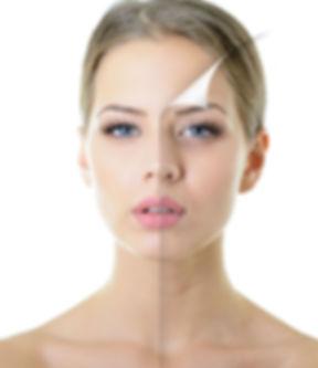 מילוי קמטים בעור הפנים