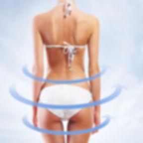 מיצוק עור הגוף בטכנולוגיית גלי רדיו