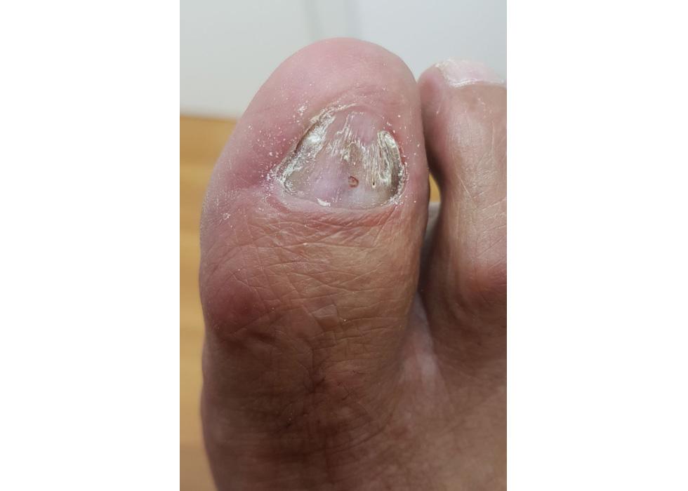 Thumb после первой обработки удалени