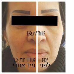 פיסול פנים בעזרת חומצה היאלורונית
