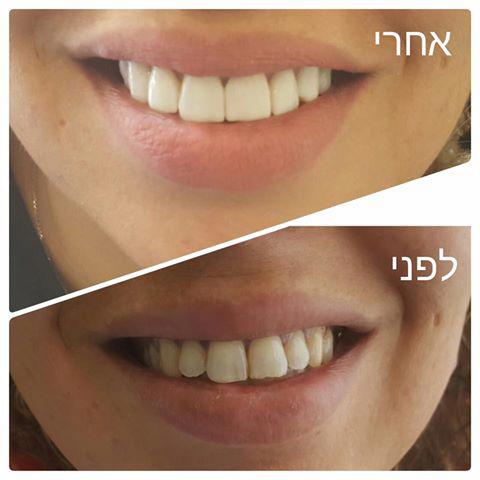 לפני ואחרי ציפוי שיניים