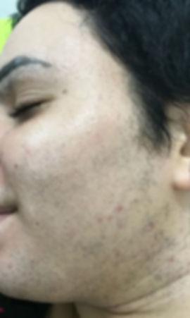 לפני טיפול הסרת שיער פנים בלייזר