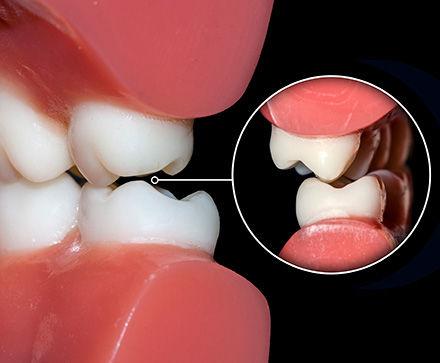 חריקת שיניים ברוקסיזם