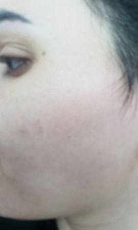 אחרי טיפול הסרת שיער פנים בלייזר