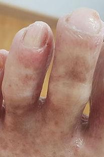 После первой обработки удаления ногтевого грибка