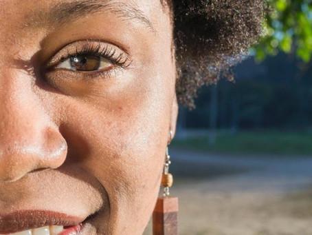Melasma: o que é, como tratar e prevenir o aparecimento das manchas
