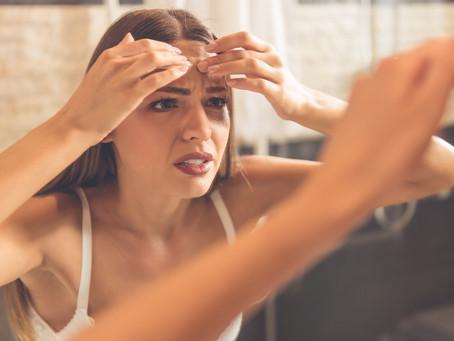 O que acontece com a sua pele quando você está estressada