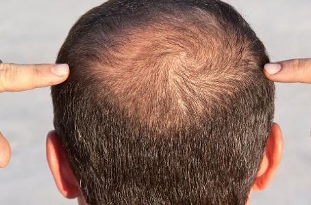 Causas da queda de cabelo: confira a lista e como prevenir
