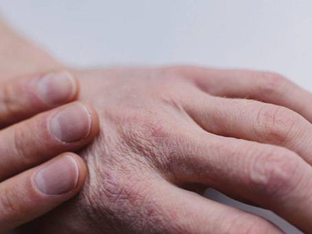 5 medidas para evitar o ressecamento da pele