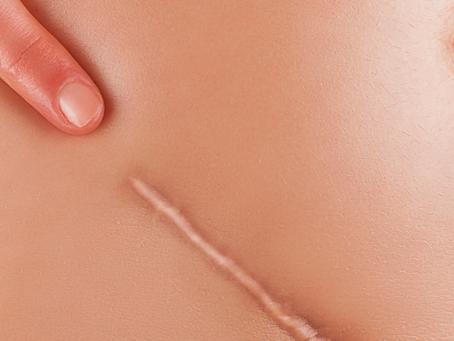 Como cuidar bem da cicatriz após uma cirurgia plástica