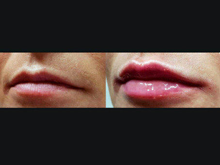 What are lip fillers?