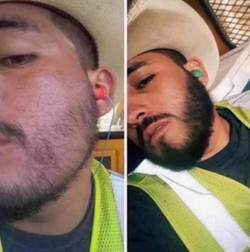 Gustavo's Before and After Results