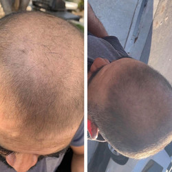 Jose's Before and After Results
