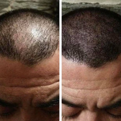 Domingo's Before and After Results