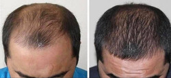 Alvaro's Before and After Results