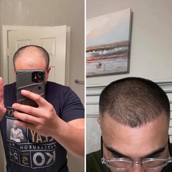 Rex's Before and After Results