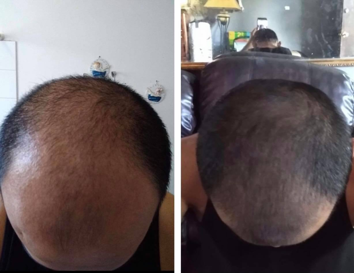 Daniel's Before and After Results