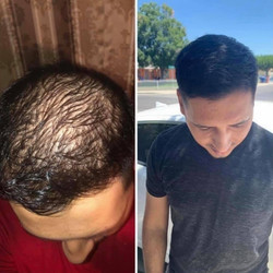 Jaime's Before and After Results
