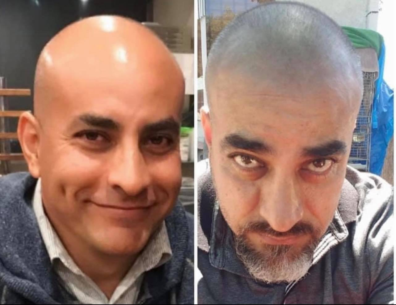 Juan Carlos's Before and After Results