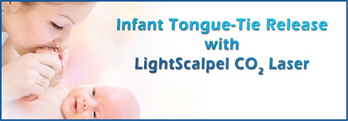 Infant Tongue-tie Release Lightscalpel