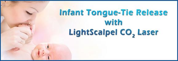 Infant Tongue-tie Release Lightscalpel