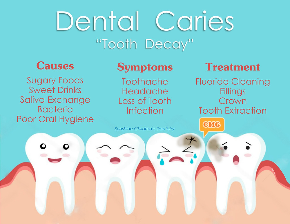 Dental Caries Tooth Decay Symptoms