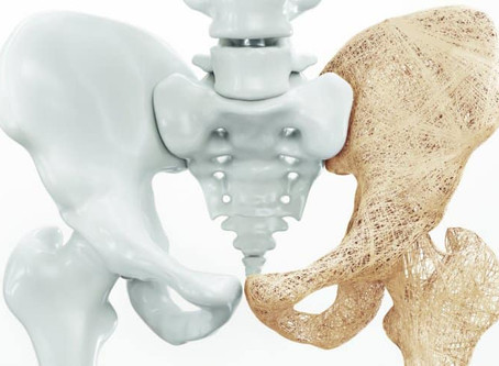 Osteo- PORE -osis knowing more about Osteoporosis and what your Osteopath can do...