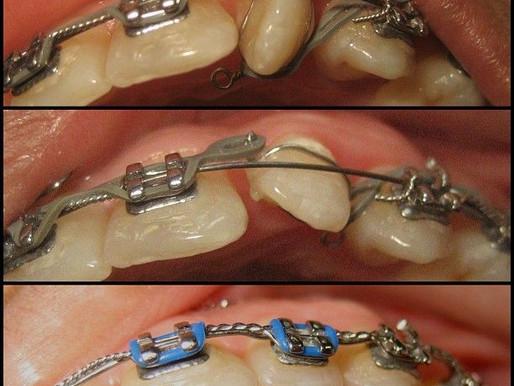 ¿Cuando es el momento ideal para llevar a mi hij@ al dentista?