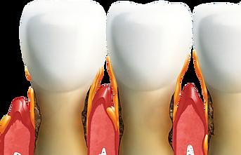 clinica-dental-sedi-toledo-periodoncia-0